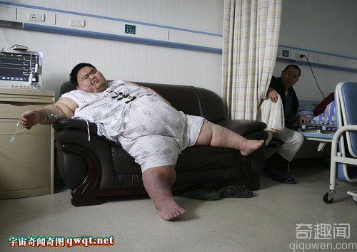 """中国第一胖""""排尿将体内的腹水排出肚子鼓胀缓解"""